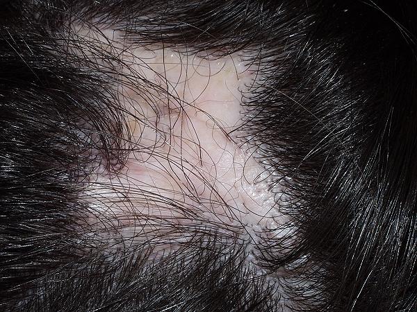 alopecia otros23 Alopecia Cicatricial